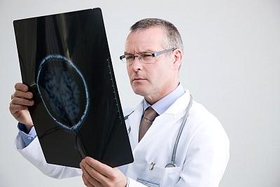 特发性癫痫诊断